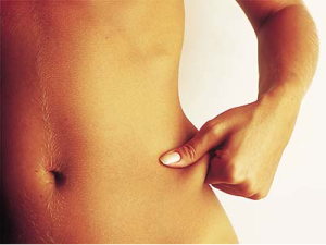 Gordura corporal feminina