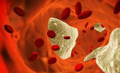 colesterol alto com placas de gorduras nas arterias