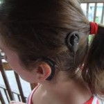 reabilitação auditiva implante coclear
