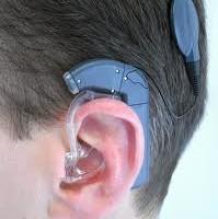 reabilitação auditiva com o implante coclear