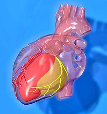 Coração - Infartos em mulheres
